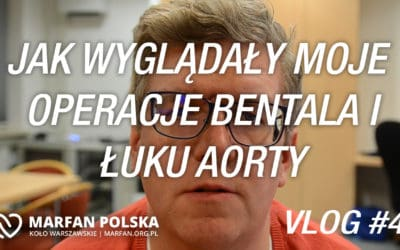 Moje operacje – Vlog #4
